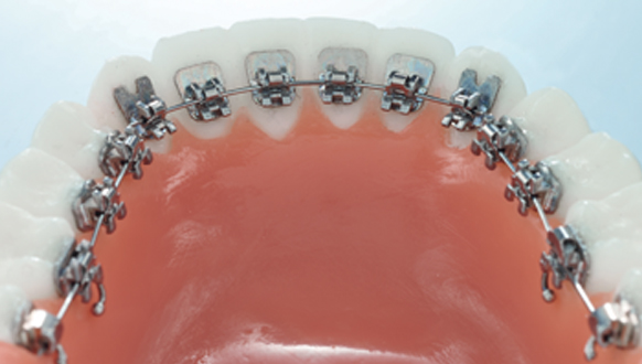 Orthodontiste Orange